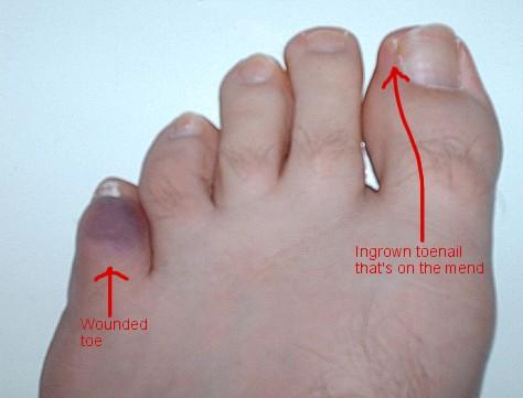 Broken Toe Shoes Hurt